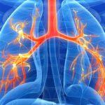 Χρόνια Αποφρακτική Πνευμονοπάθεια (ΧΑΠ) και συσχέτιση με τη Βιταμίνη D